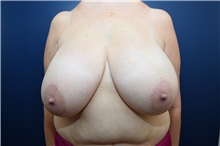 Breast Reduction Before Photo by Michael Dobryansky, MD, FACS; Babylon, NY - Case 38363