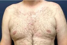 Male Breast Reduction After Photo by Michael Dobryansky, MD, FACS; Garden City, NY - Case 38367