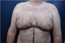 Male Breast Reduction Before Photo by Michael Dobryansky, MD, FACS; Garden City, NY - Case 38367