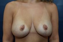 Breast Lift After Photo by Michael Dobryansky, MD, FACS; Babylon, NY - Case 40840