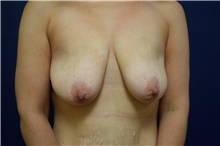 Breast Lift Before Photo by Michael Dobryansky, MD, FACS; Babylon, NY - Case 40840