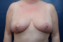 Breast Lift After Photo by Michael Dobryansky, MD, FACS; Garden City, NY - Case 40841
