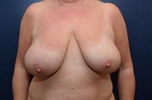 Breast Lift Before Photo by Michael Dobryansky, MD, FACS; Garden City, NY - Case 40841
