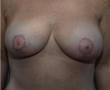 Breast Lift After Photo by Michael Dobryansky, MD, FACS; Garden City, NY - Case 40843