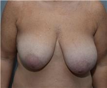 Breast Lift Before Photo by Michael Dobryansky, MD, FACS; Garden City, NY - Case 40843