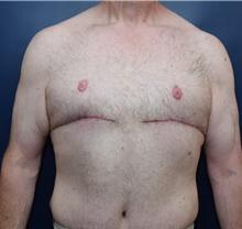 Male Breast Reduction After Photo by Michael Dobryansky, MD, FACS; Garden City, NY - Case 40845