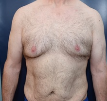 Male Breast Reduction Before Photo by Michael Dobryansky, MD, FACS; Garden City, NY - Case 40845