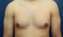 Male Breast Reduction Before Photo by Michael Dobryansky, MD, FACS; Babylon, NY - Case 40847