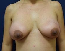 Breast Reconstruction After Photo by Michael Dobryansky, MD, FACS; Garden City, NY - Case 41732