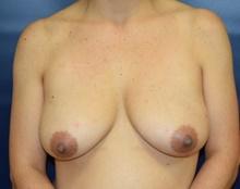 Breast Reconstruction Before Photo by Michael Dobryansky, MD, FACS; Garden City, NY - Case 41732