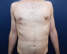 Male Breast Reduction After Photo by Michael Dobryansky, MD, FACS; Garden City, NY - Case 41740