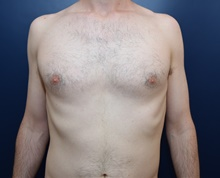 Male Breast Reduction Before Photo by Michael Dobryansky, MD, FACS; Garden City, NY - Case 41740