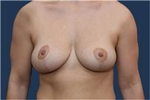 Breast Lift After Photo by Michael Dobryansky, MD, FACS; Garden City, NY - Case 41743