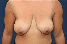 Breast Lift Before Photo by Michael Dobryansky, MD, FACS; Garden City, NY - Case 41743