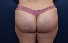 Buttock Lift with Augmentation After Photo by Michael Dobryansky, MD, FACS; Garden City, NY - Case 41747