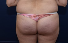 Buttock Lift with Augmentation Before Photo by Michael Dobryansky, MD, FACS; Garden City, NY - Case 41747