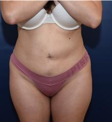 Liposuction After Photo by Michael Dobryansky, MD, FACS; Garden City, NY - Case 41750