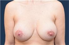 Breast Augmentation After Photo by Michael Dobryansky, MD, FACS; Garden City, NY - Case 42524