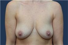 Breast Augmentation Before Photo by Michael Dobryansky, MD, FACS; Garden City, NY - Case 42524