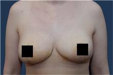 Breast Reduction After Photo by Michael Dobryansky, MD, FACS; Garden City, NY - Case 43252