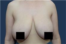 Breast Reduction Before Photo by Michael Dobryansky, MD, FACS; Garden City, NY - Case 43252