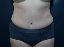 Tummy Tuck After Photo by Michael Dobryansky, MD, FACS; Garden City, NY - Case 43254