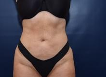 Liposuction After Photo by Michael Dobryansky, MD, FACS; Garden City, NY - Case 43255