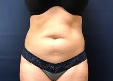 Liposuction Before Photo by Michael Dobryansky, MD, FACS; Garden City, NY - Case 43255