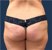 Buttock Lift with Augmentation Before Photo by Michael Dobryansky, MD, FACS; Garden City, NY - Case 43256