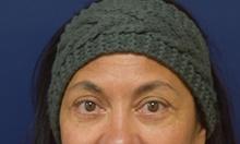 Eyelid Surgery After Photo by Michael Dobryansky, MD, FACS; Garden City, NY - Case 43258