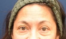 Eyelid Surgery Before Photo by Michael Dobryansky, MD, FACS; Garden City, NY - Case 43258