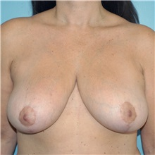 Breast Reduction After Photo by Tracy Pfeifer, MD; New York, NY - Case 32150