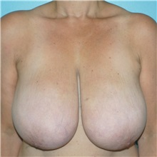 Breast Reduction Before Photo by Tracy Pfeifer, MD; New York, NY - Case 32150