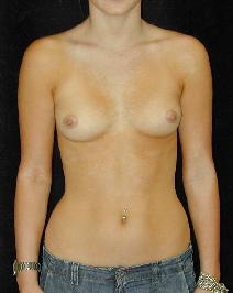 Breast Augmentation Before Photo by T.Y. Steven Ip, MD; Newport Beach, CA - Case 6912