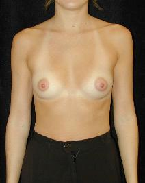 Breast Augmentation Before Photo by T.Y. Steven Ip, MD; Newport Beach, CA - Case 6913