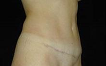 Tummy Tuck After Photo by Craig Mezrow, MS, MD, FACS; Bala Cynwyd, PA - Case 33973