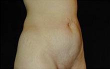 Tummy Tuck Before Photo by Craig Mezrow, MS, MD, FACS; Bala Cynwyd, PA - Case 33973