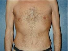 Tummy Tuck After Photo by Craig Mezrow, MS, MD, FACS; Bala Cynwyd, PA - Case 33976