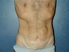 Tummy Tuck Before Photo by Craig Mezrow, MS, MD, FACS; Bala Cynwyd, PA - Case 33976