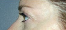 Botulinum Toxin After Photo by Craig Mezrow, MS, MD, FACS; Bala Cynwyd, PA - Case 33980