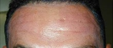 Botulinum Toxin After Photo by Craig Mezrow, MS, MD, FACS; Bala Cynwyd, PA - Case 33982