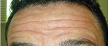 Botulinum Toxin Before Photo by Craig Mezrow, MS, MD, FACS; Bala Cynwyd, PA - Case 33982