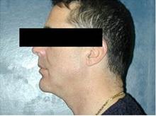 Chin Augmentation After Photo by Craig Mezrow, MS, MD, FACS; Bala Cynwyd, PA - Case 33986