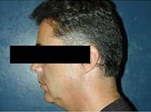 Chin Augmentation Before Photo by Craig Mezrow, MS, MD, FACS; Bala Cynwyd, PA - Case 33986