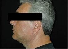 Chin Augmentation After Photo by Craig Mezrow, MS, MD, FACS; Bala Cynwyd, PA - Case 33987
