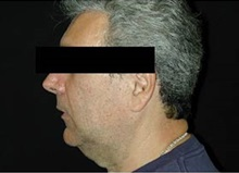 Chin Augmentation Before Photo by Craig Mezrow, MS, MD, FACS; Bala Cynwyd, PA - Case 33987