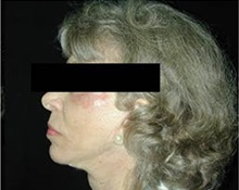 Chin Augmentation After Photo by Craig Mezrow, MS, MD, FACS; Bala Cynwyd, PA - Case 33988