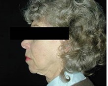 Chin Augmentation Before Photo by Craig Mezrow, MS, MD, FACS; Bala Cynwyd, PA - Case 33988