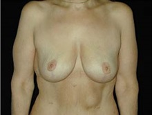 Breast Lift After Photo by Craig Mezrow, MS, MD, FACS; Bala Cynwyd, PA - Case 33993