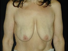 Breast Lift Before Photo by Craig Mezrow, MS, MD, FACS; Bala Cynwyd, PA - Case 33993